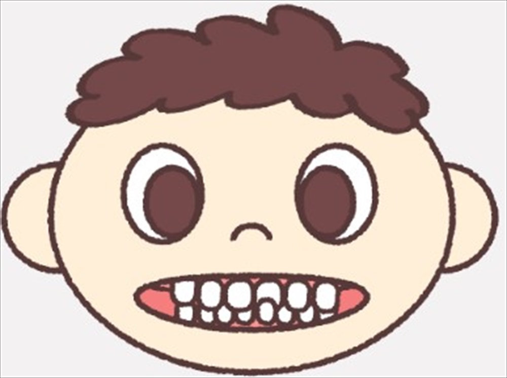 歯医者さんが教える!矯正歯科治療の種類④