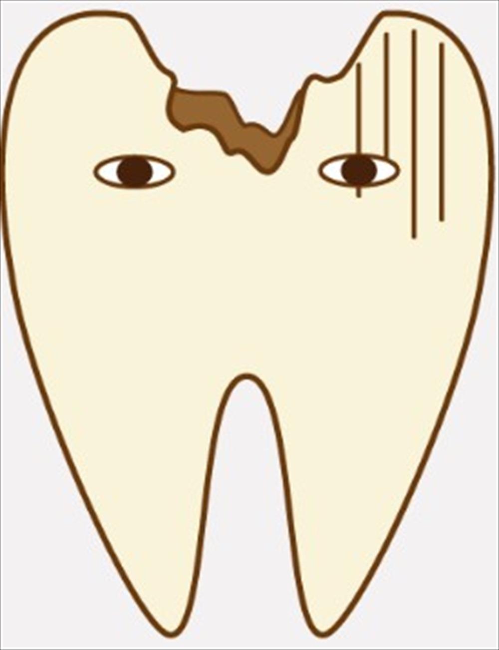 歯医者さんが教える!治療中の歯を放置していたらどうなるの?①