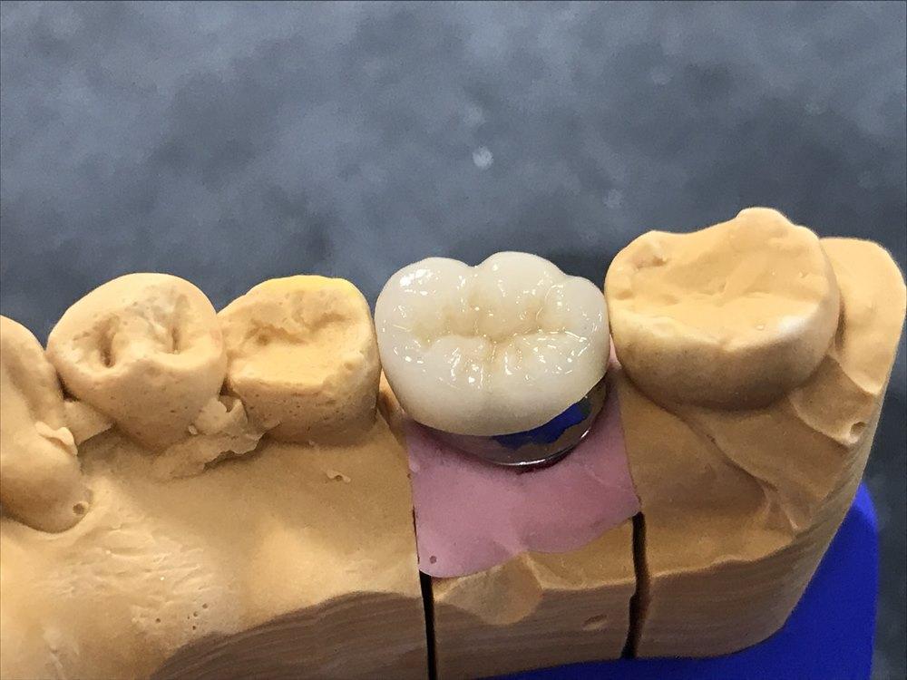 歯医者さん自身も自分に入れたくなるセラミック④