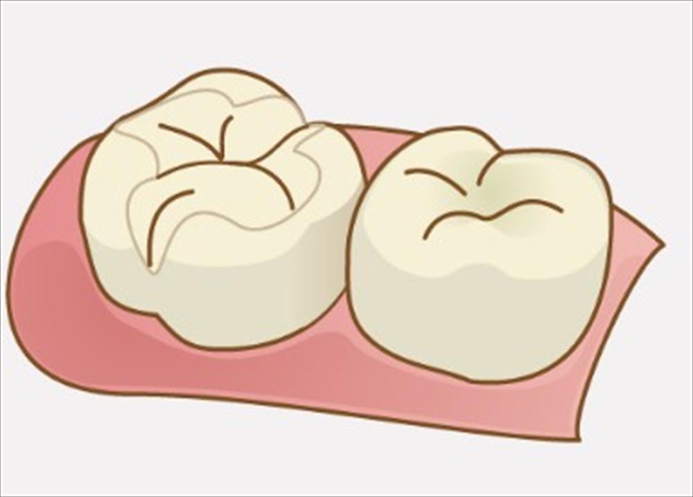 歯医者さんも困る虫歯になりやすい詰め物とは?