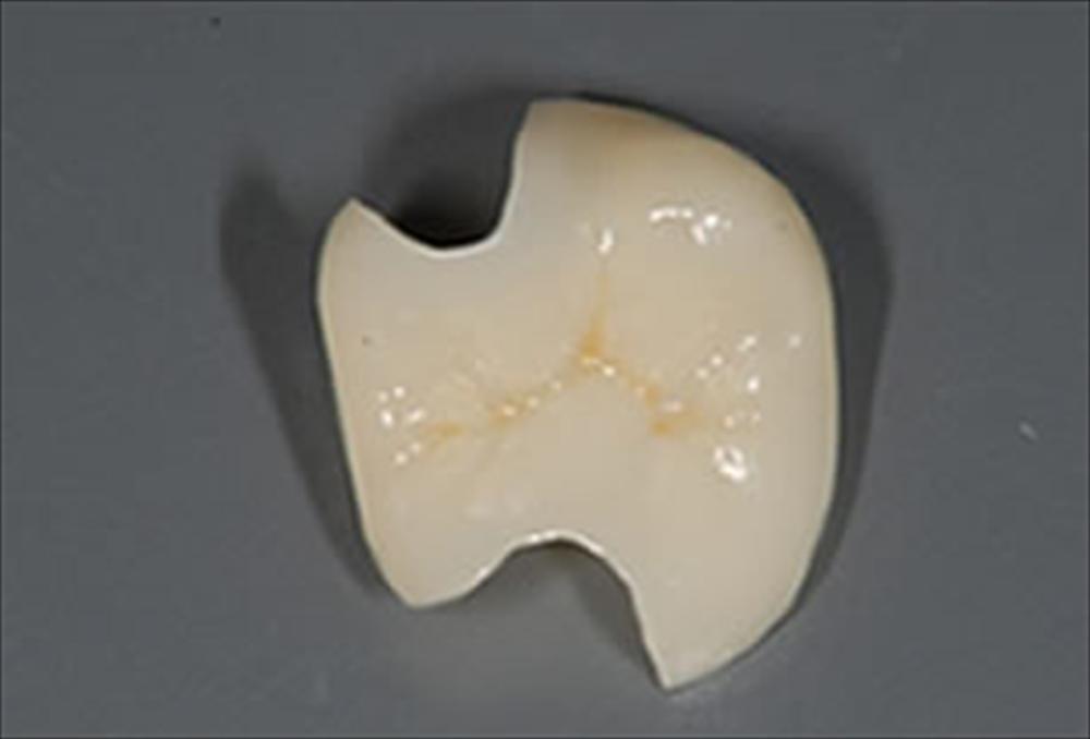 歯医者さんが教える!セラミックの種類の違い④