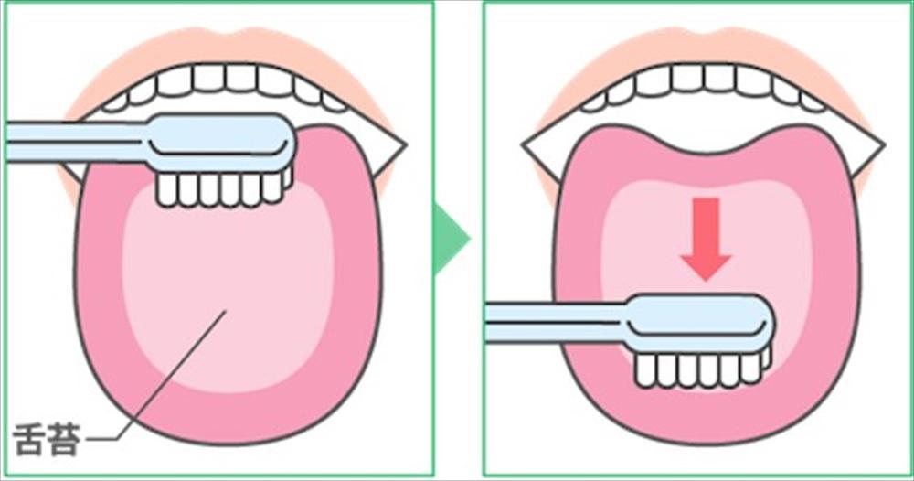 歯科衛生士が教える!口臭4つの原因