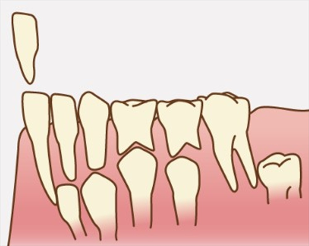 歯医者さんが鬼滅の刃で感じた歯のこと②