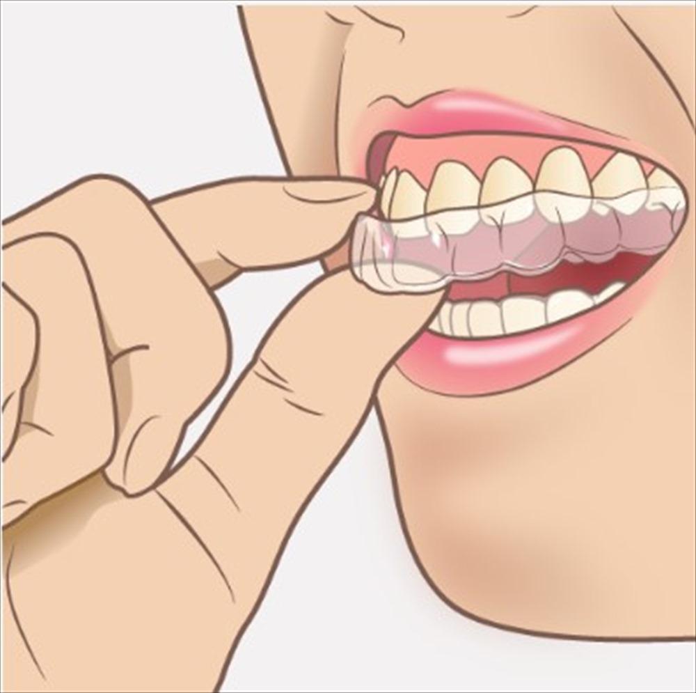 歯医者さんが教える!矯正歯科治療の種類②