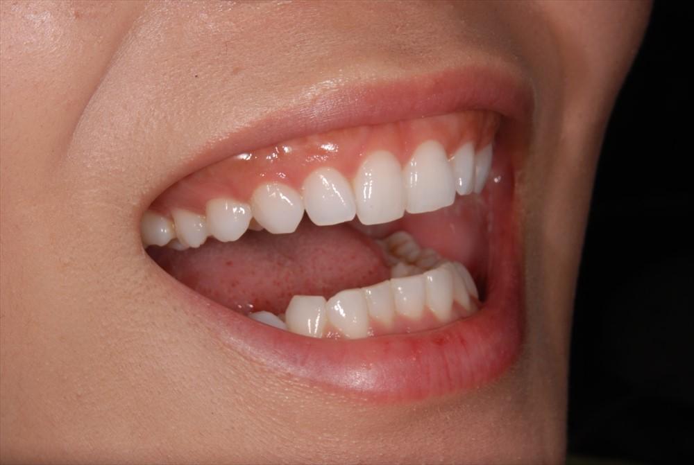 年齢別の歯の本数①