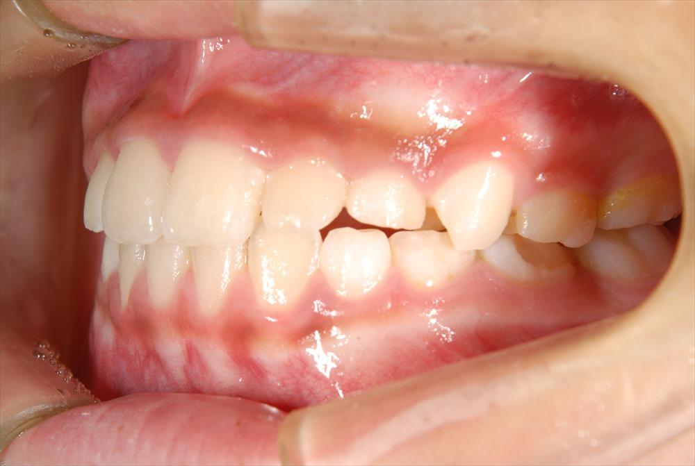 歯医者さんが教える!タバコと子供の歯肉の関係とは?
