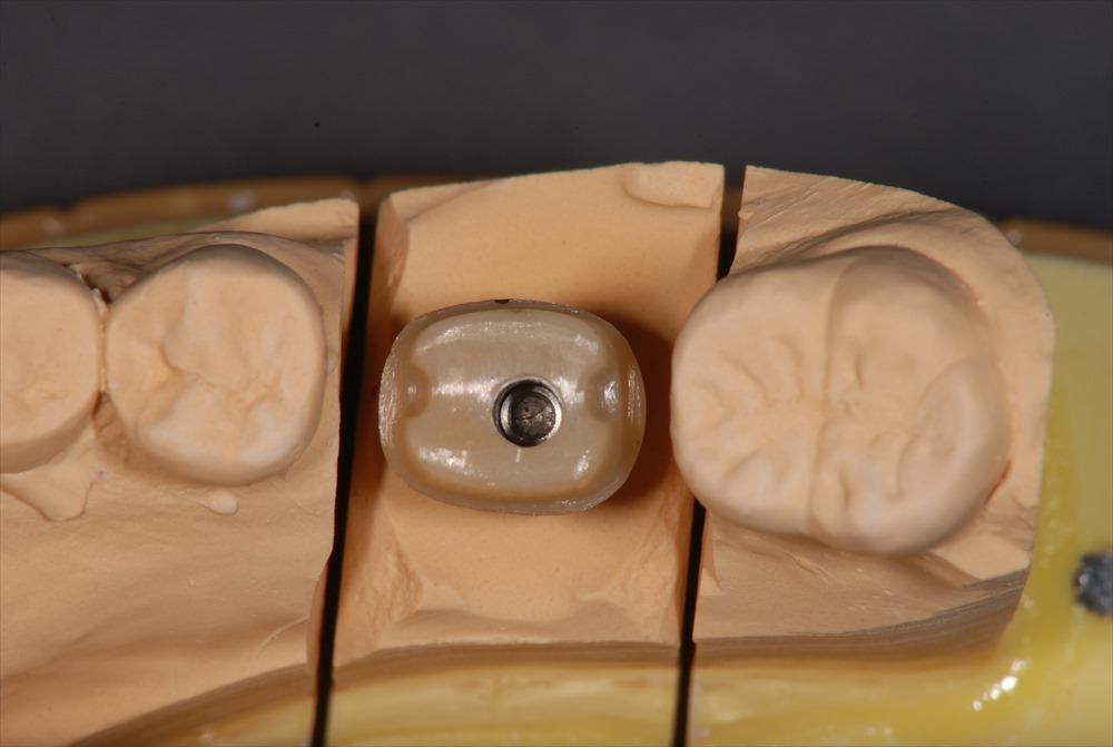 歯医者さんが教える!インプラントのかぶせ物と土台の1例