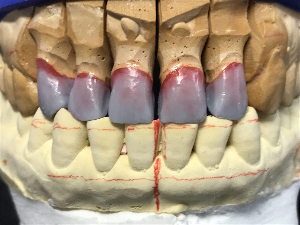 歯医者さんで入れるセラミックはこうして作られる①
