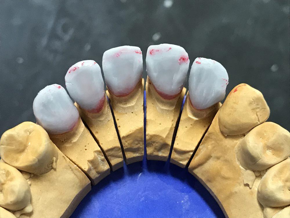 歯医者さんで入れるセラミックはこうして作られる⑤(まとめ)