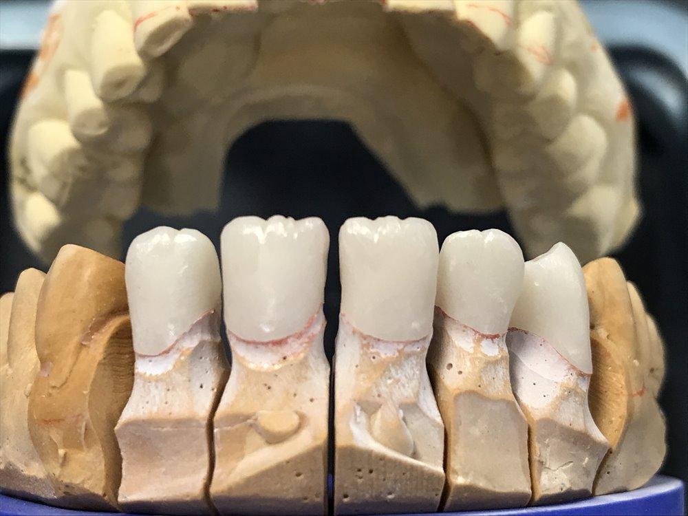 歯医者さんで入れるセラミックはこうして作られる③