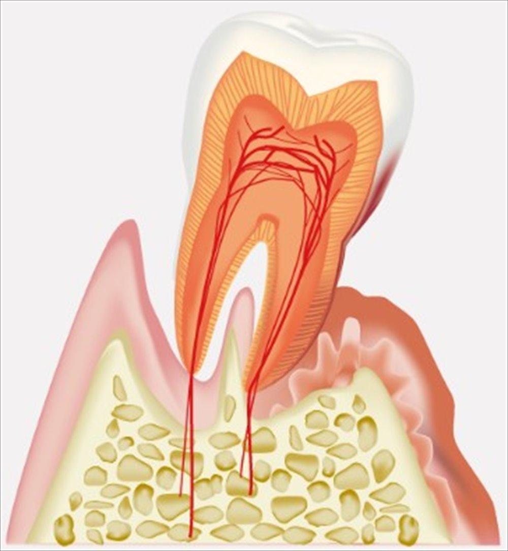 歯医者さんも驚いた!歴史上の人物とその歯周病①