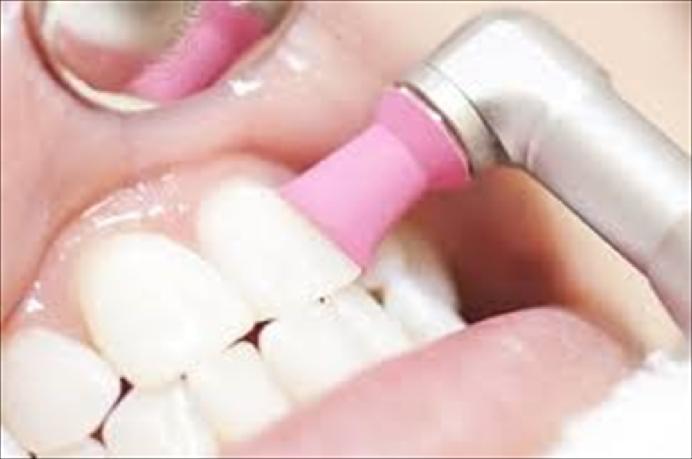 虫歯予防・歯周予防に大事なPMTC