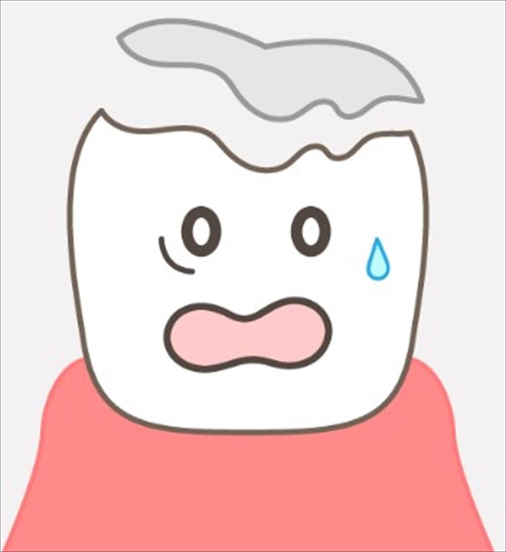 歯医者さんが教える!詰め物・かぶせ物が取れるタイミングって?
