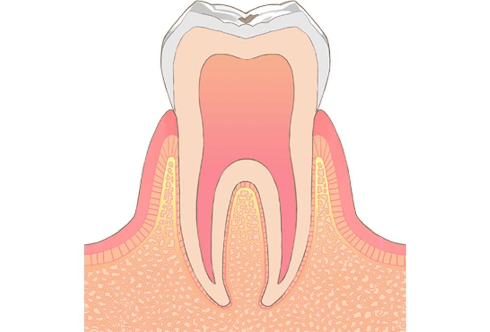初期 画像 虫歯