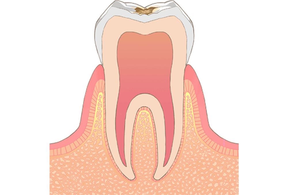 歯医者さんが教える!治療しなくて良い虫歯って?