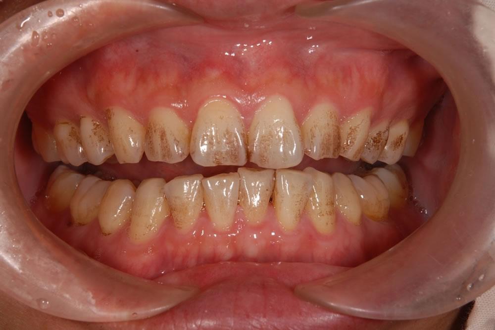 歯医者さんが教える!歯の色が気になる場合の対処法