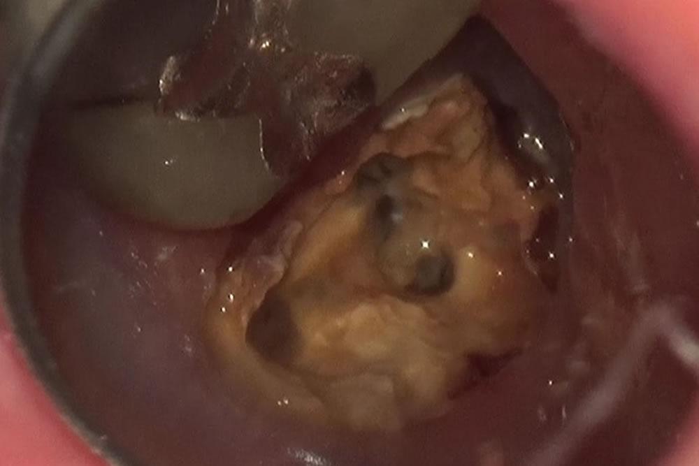 虫歯の除去~隔壁の形成