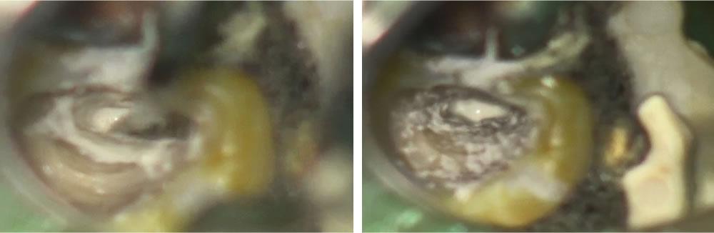 根尖孔の封鎖・根管充填