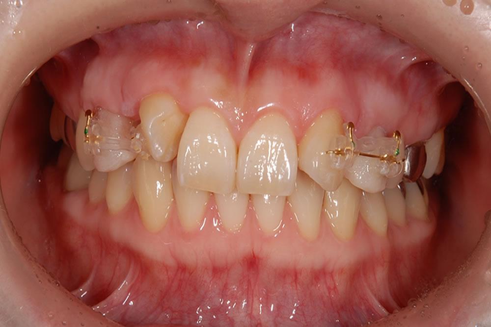 仮歯の装着