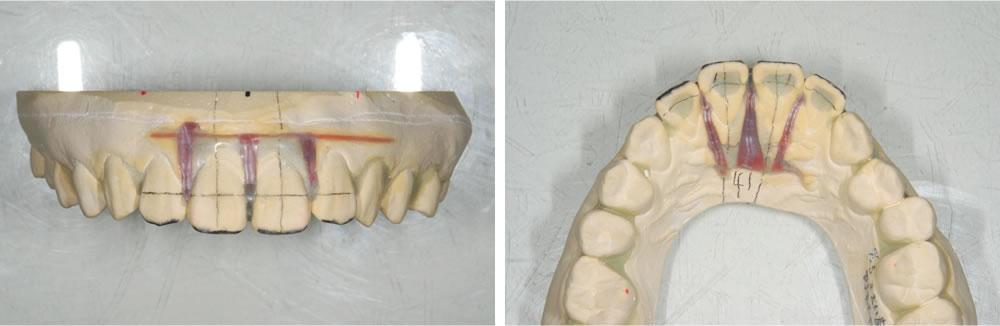 歯型の採取~マウスピース矯正装置の製作