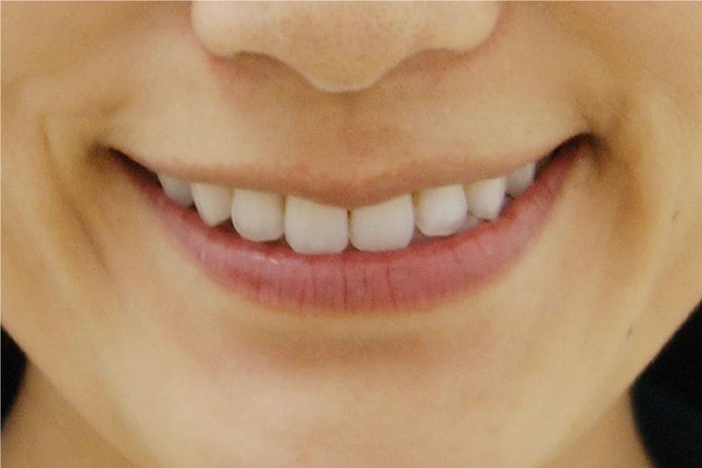 歯並びの最終チェック