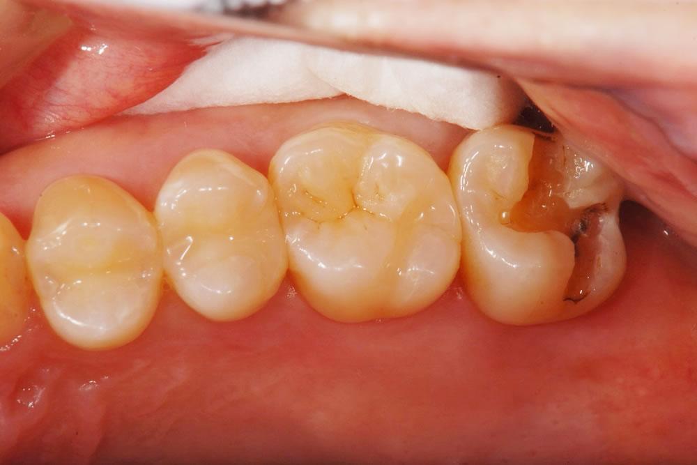 銀歯の除去