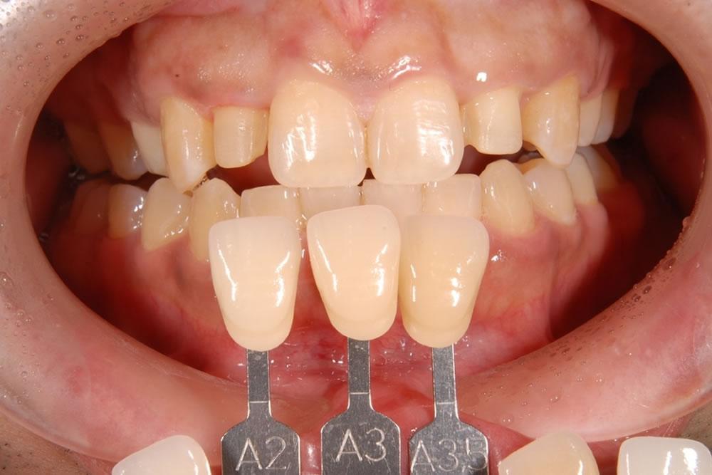 前歯の切削処置