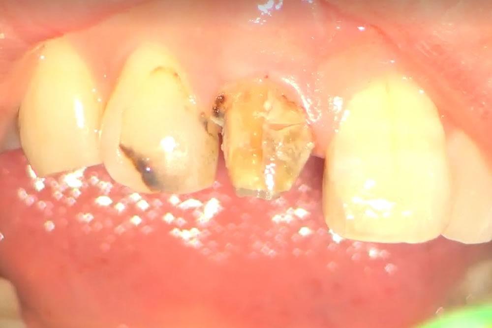 虫歯治療を実施