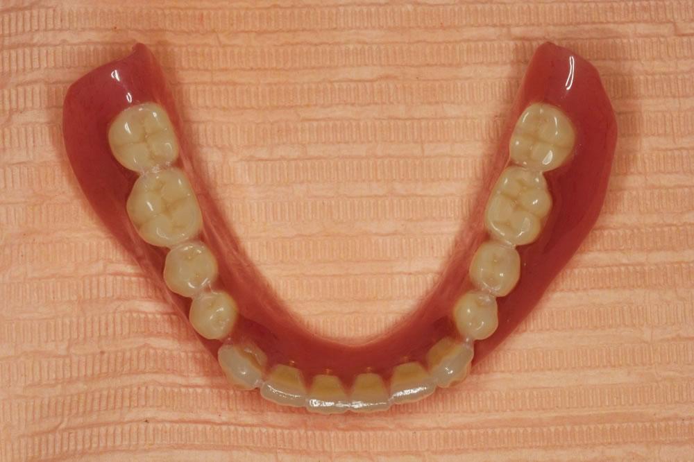 上顎の新しい入れ歯