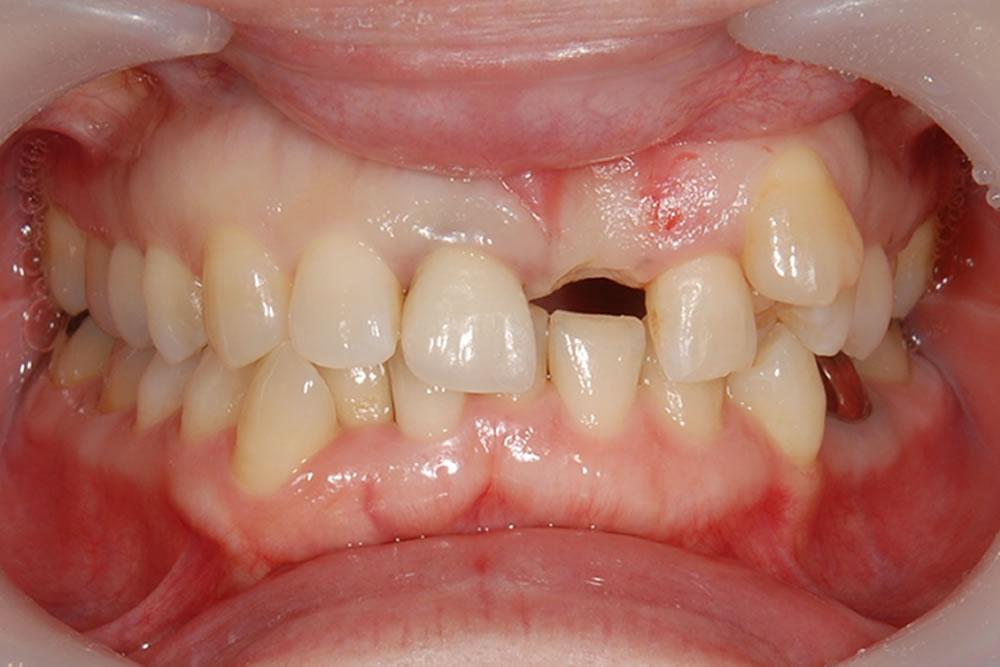 抜歯から4ヵ月後