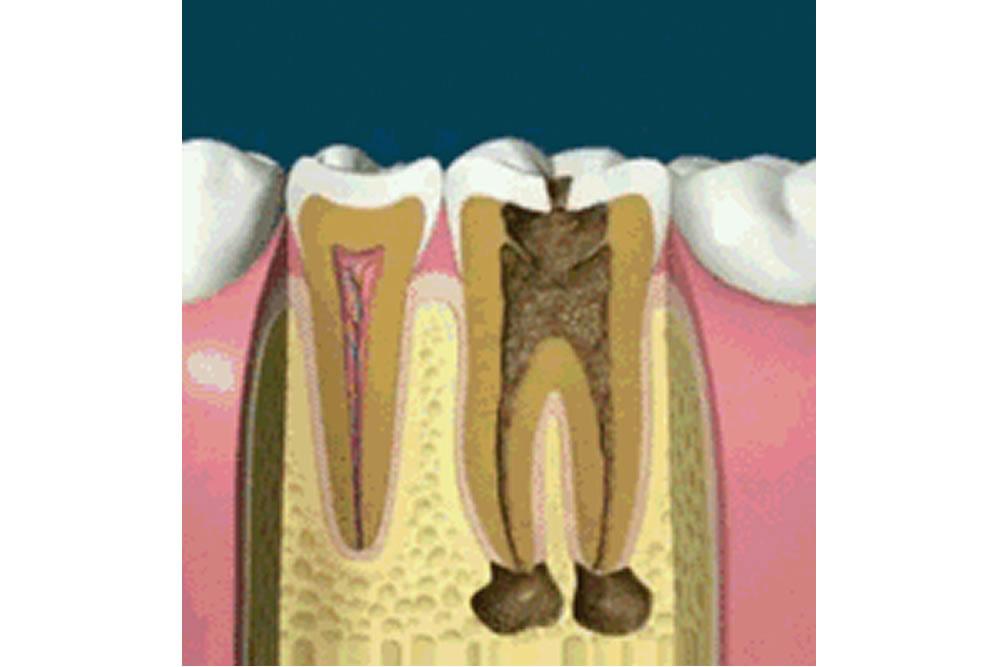 歯医者さんが教える!根管治療におけるマイクロスコープと肉眼の違い①