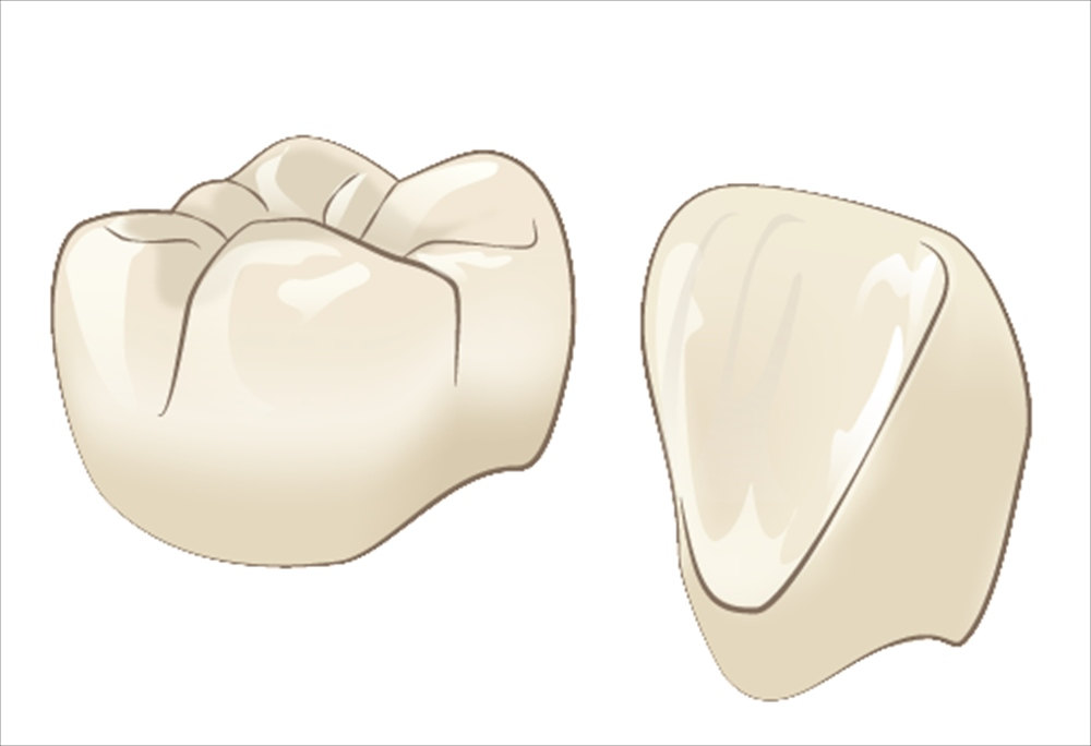 歯科の保険診療と自由診療における材質の違い②