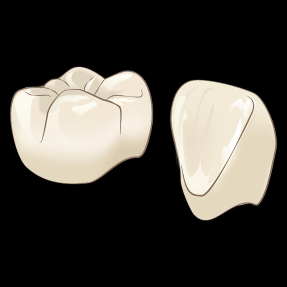 歯を長持ちさせる治療④