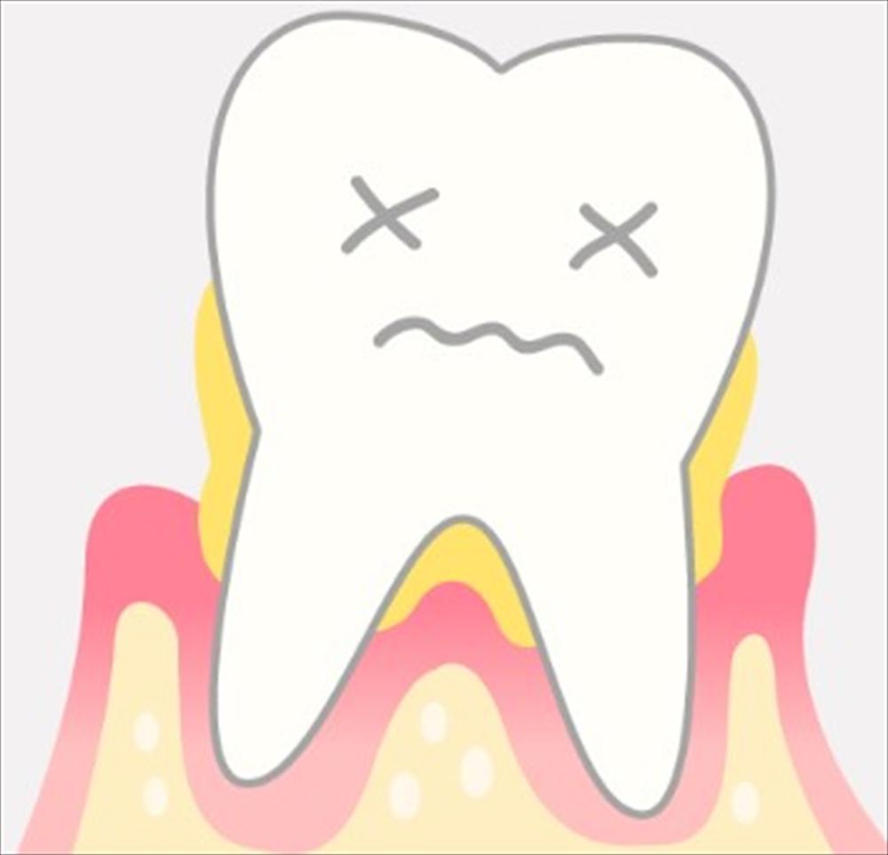 歯医者さんが教える!できるだけ歯を抜きたくない方へのアドバイス⑥