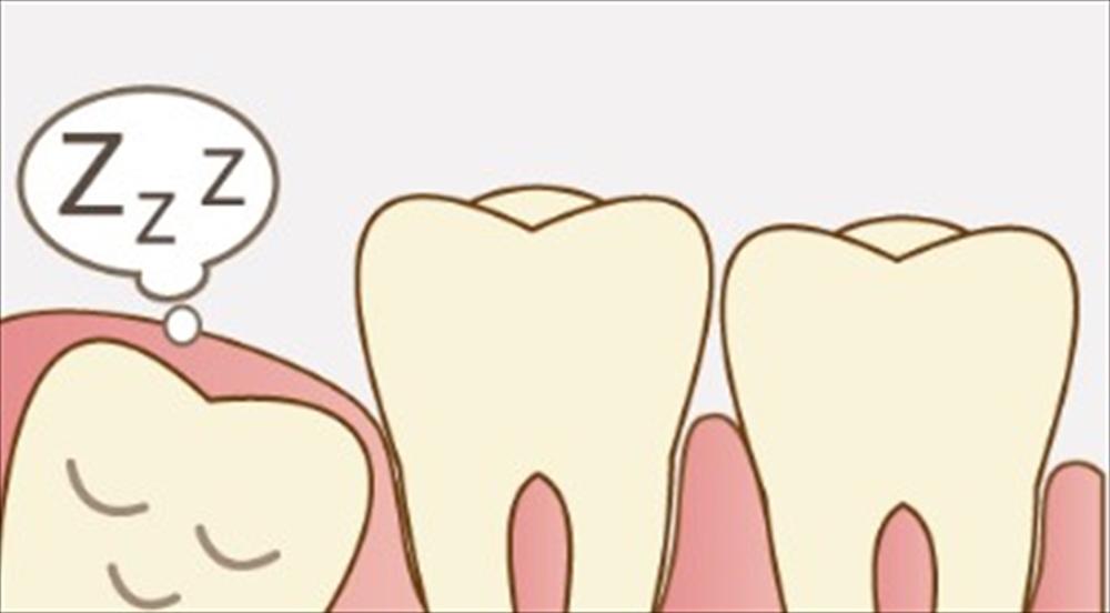 歯医者さんが教える!親知らずの移植について①