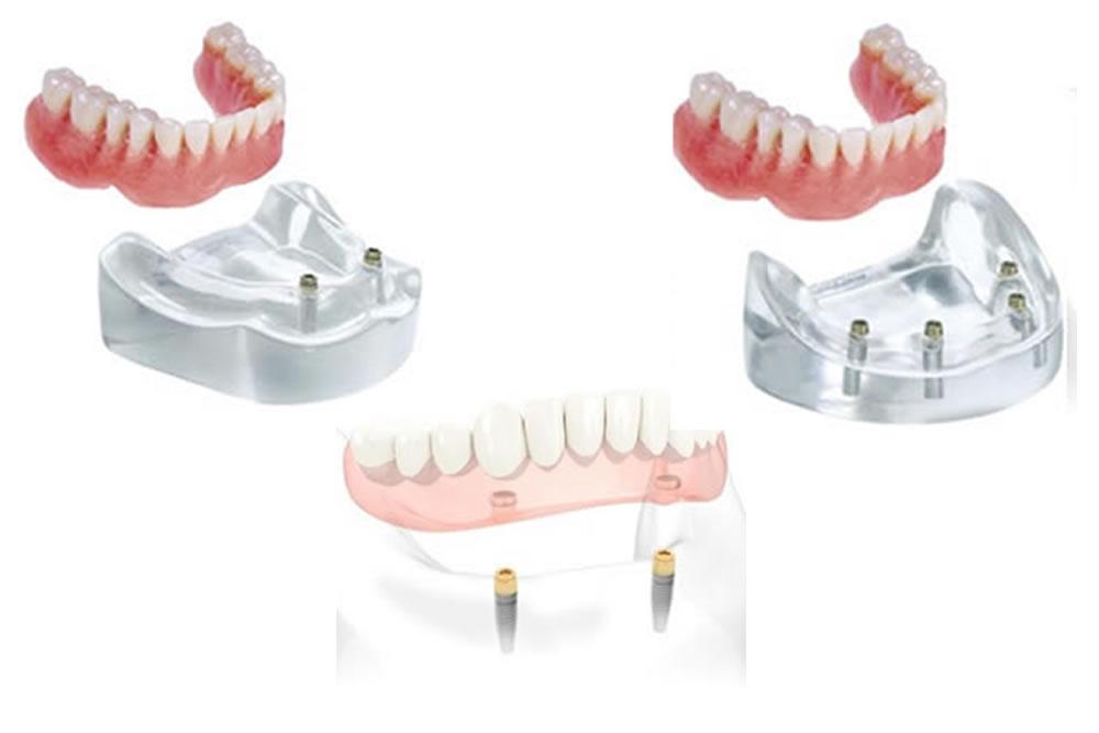 インプラント併用義歯