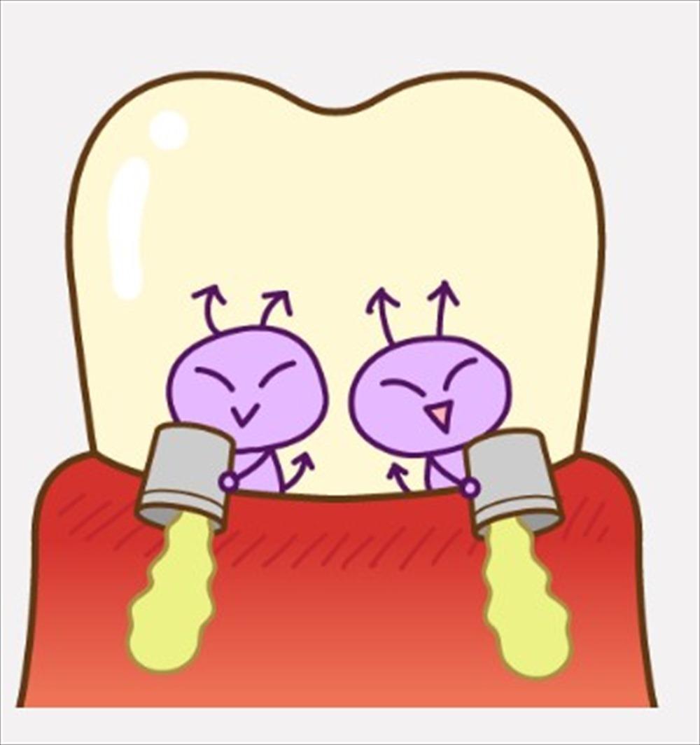 歯周病は認知症に関係していた!