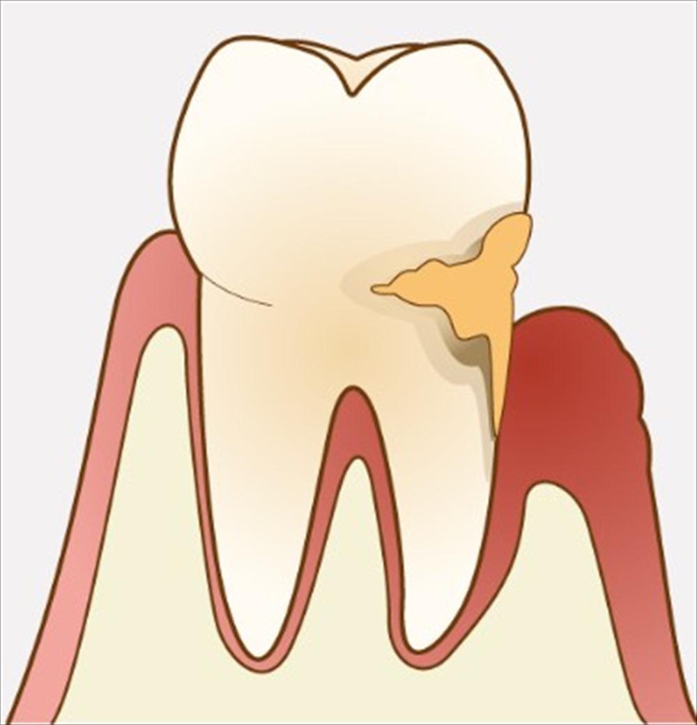 歯医者さんが教える!歯石って取ったほうが良いの?