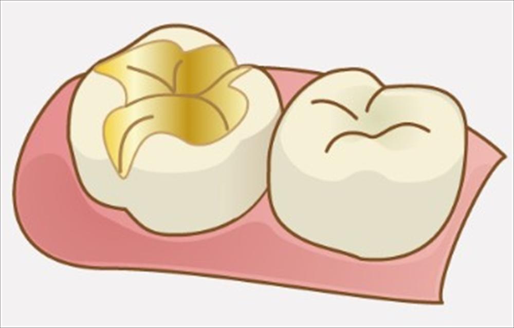 歯医者さんが教える!精密根管治療の流れ②