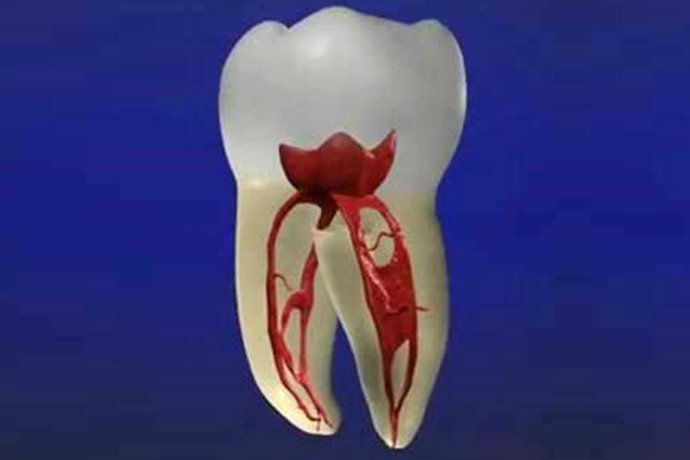 抜歯リスクの軽減