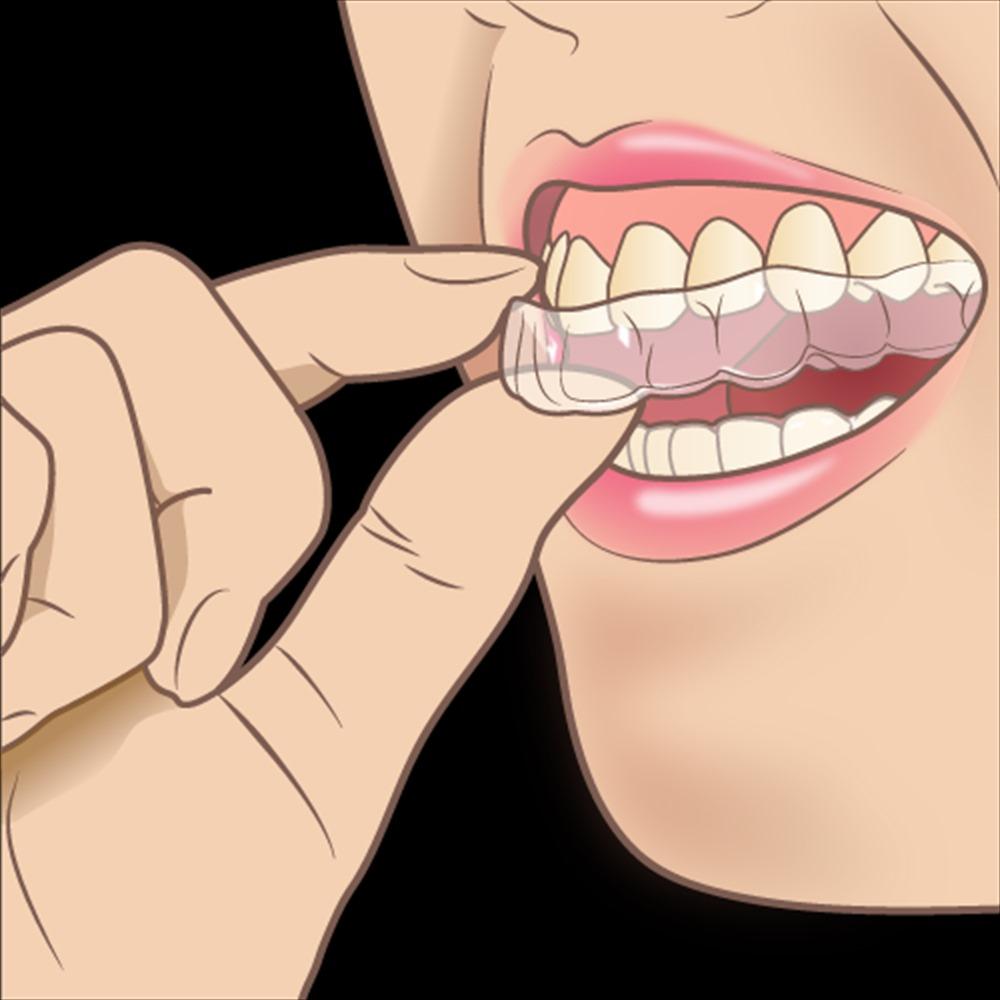歯医者さんが教える!マウスピース矯正で失敗しないために