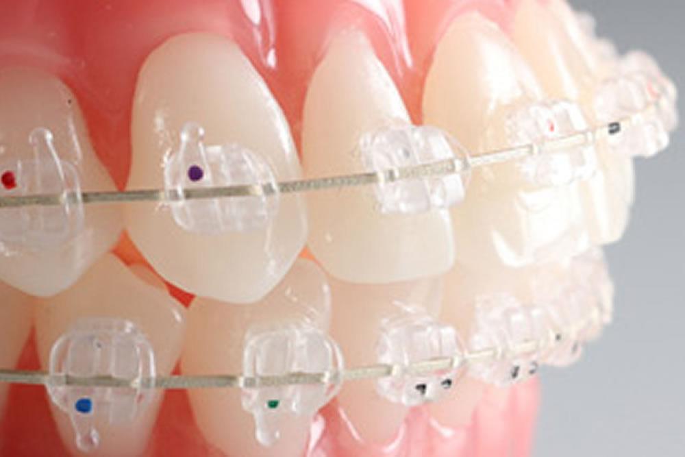 歯医者さんが教える!歯の矯正の種類とその選び方①