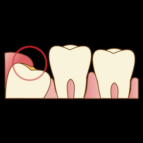 歯医者さんが教える!親知らずが腫れてしまったらどうすべき?②