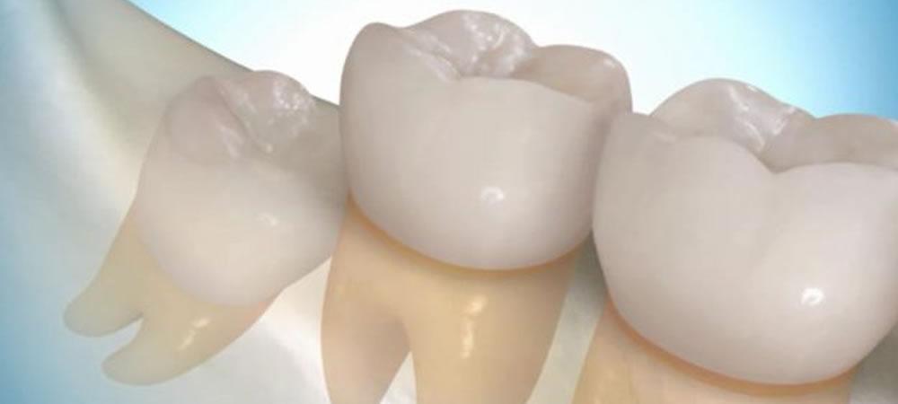 親知らずの抜歯や保存
