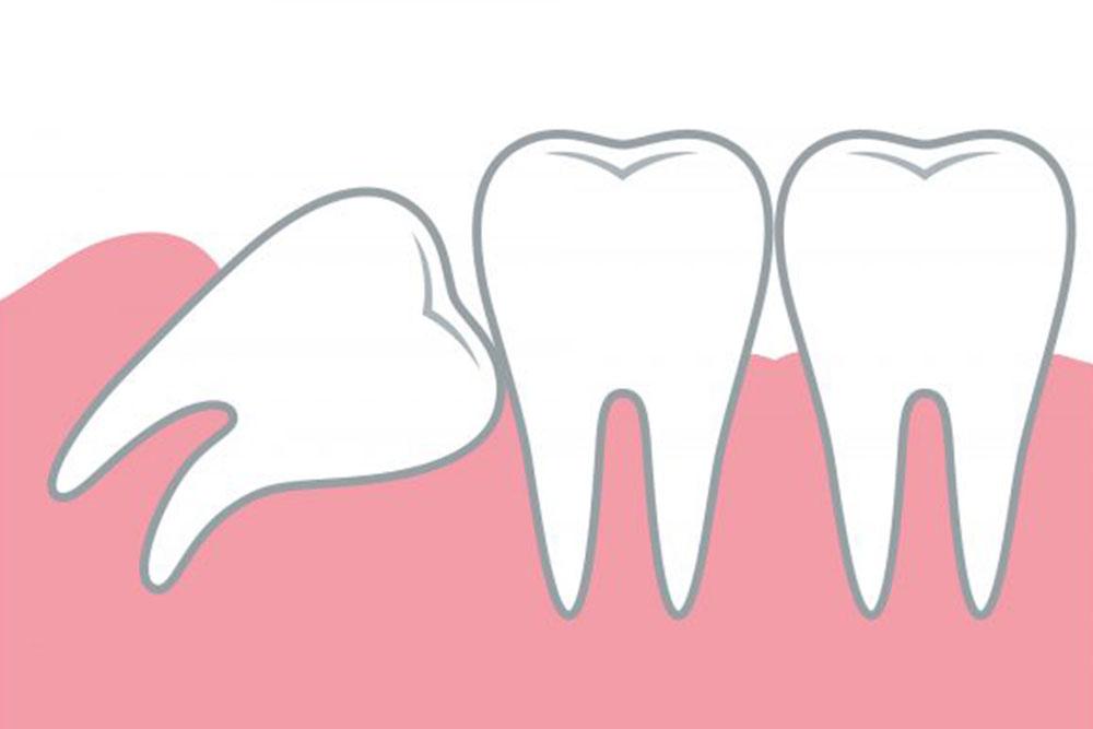 歯列を乱す生え方