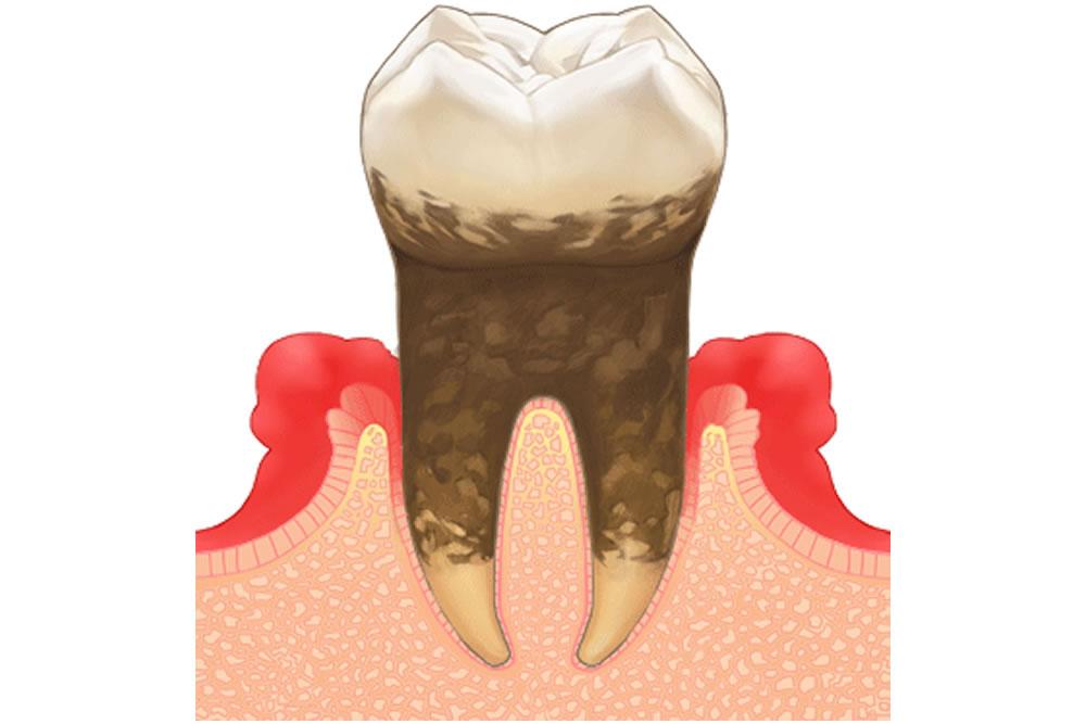 智歯周囲炎