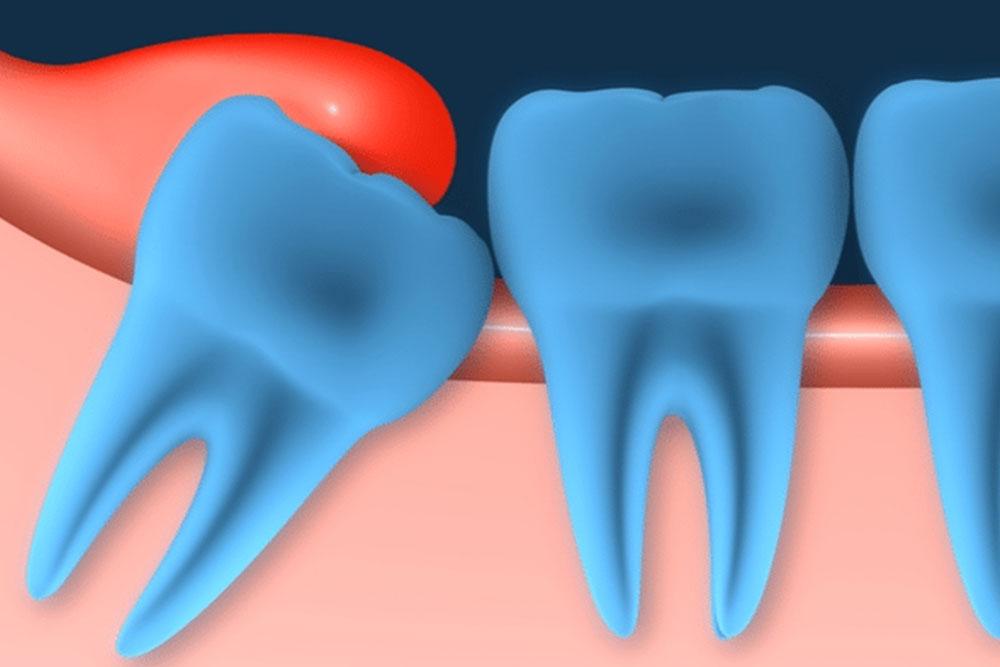 歯医者さんが教える!歯の治療が1回で終わらない理由③