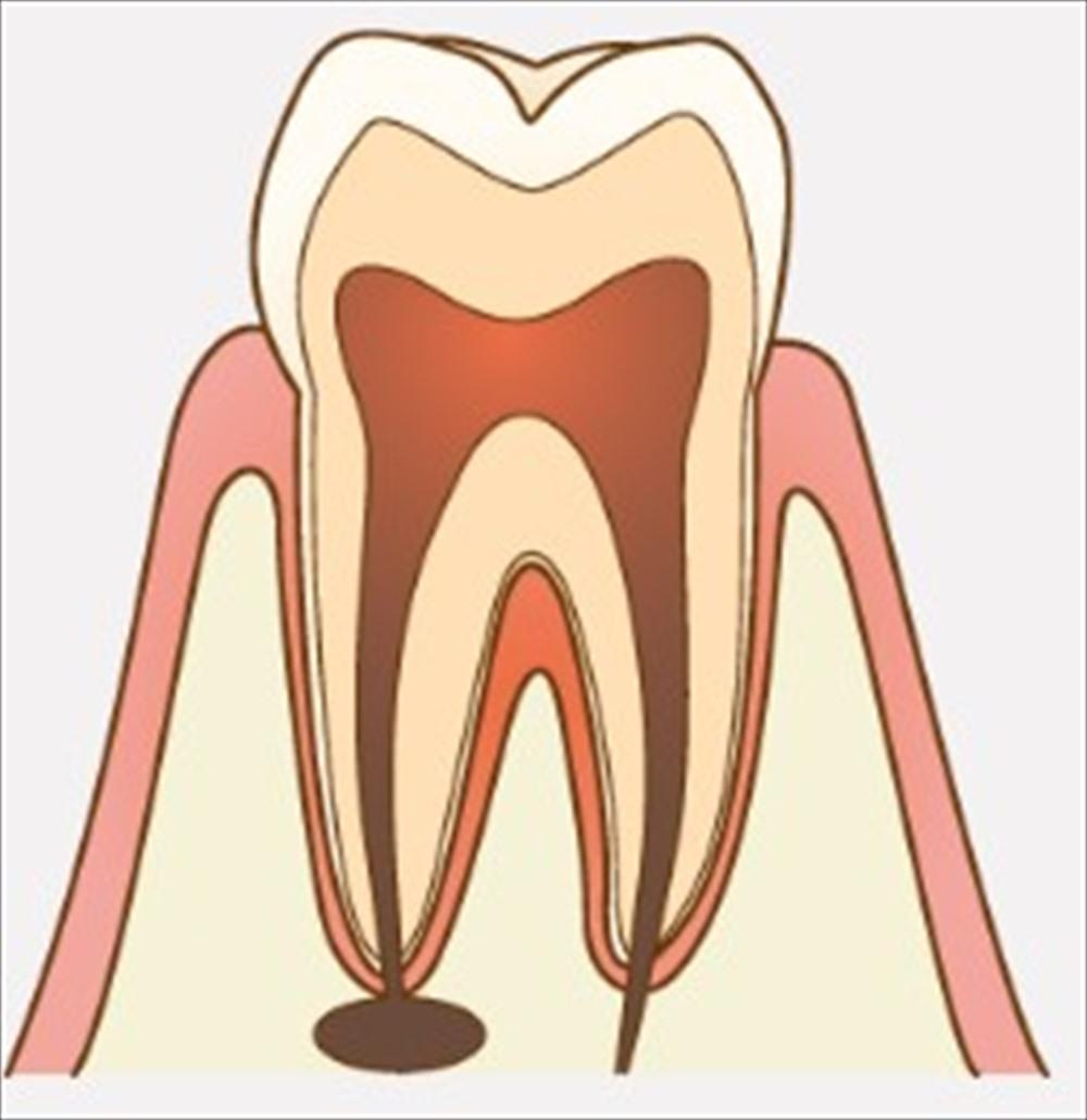 歯医者さんが教える!できるだけ歯を抜きたくない方へのアドバイス④