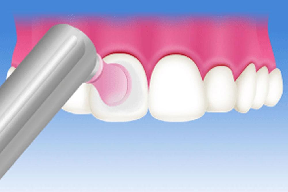 歯面清掃(PMTC)