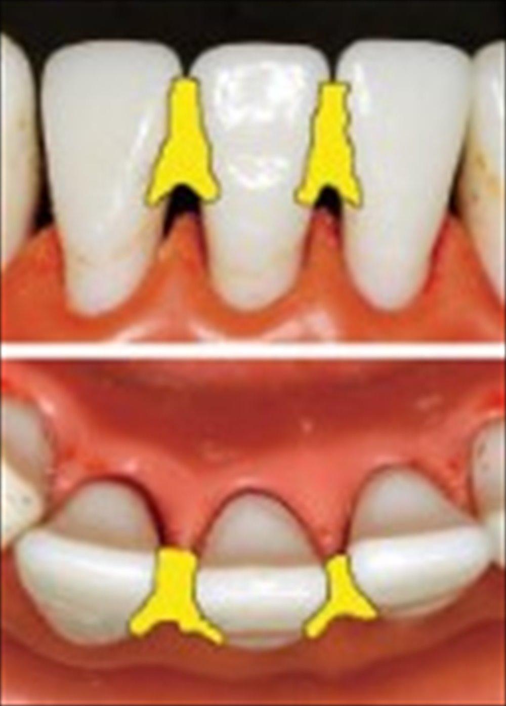 教えて歯医者さん!歯の治療をした後いつ食事して良い?⑤